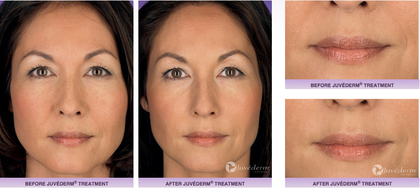 juvederm fillers, fillers, antiaging, wrinkles, confidence, before and after