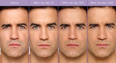 botox, botox cosmetic, male botox, before and after, wrinkles, antiaging